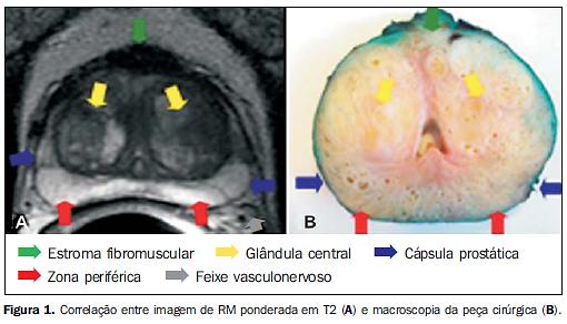 Ressonância magnética da próstata: uma visão geral para o radiologista