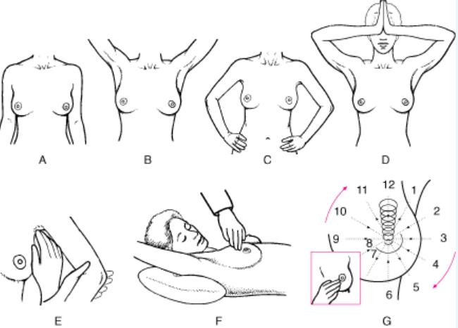 Ilustrações de Exames físicos das mamas.